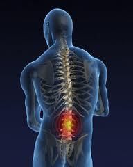 Поясничный остеохондроз, поясничный радикулит